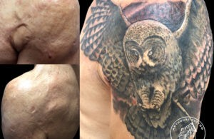 ArtHouse Tattoo Before and After 2